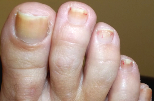 Toe Fungus Before Cold Laser Therapy